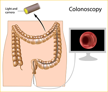 colonoscopyImage